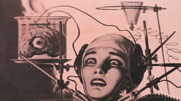 Transplantacja głowy jest możliwa?