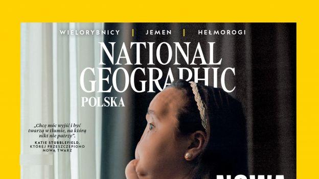 """""""Nowa twarz Katie"""": National Geographic publikuje reportaż o najmłodszej w USA pacjentce, która otrzymała całkowity przeszczep twarzy."""