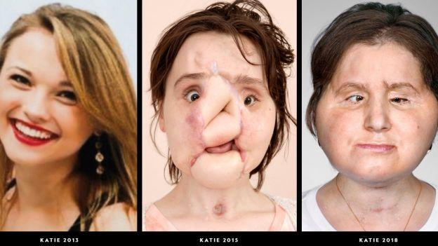 Chirurdzy w Klinice Cleveland najpierw zrekonstruowali zdeformowaną twarz Katie po czym zastąpili ją twarzą od dawcy.