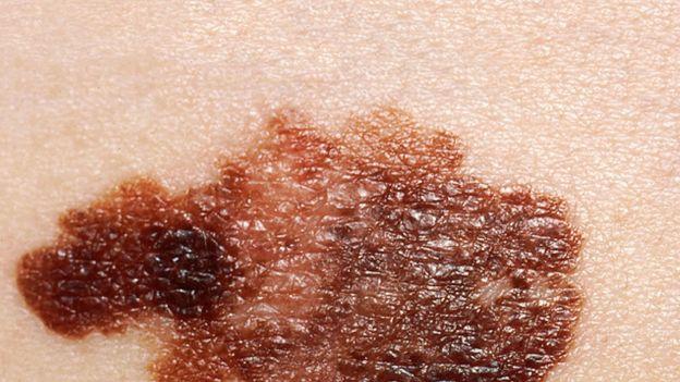 Szczepionka na raka działa w 100%. Wyleczono czerniaka u myszy