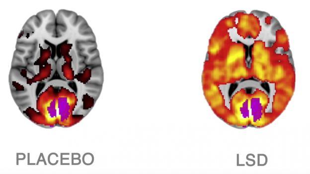 Aktywność mózgu pod wpływem placebo i LSD