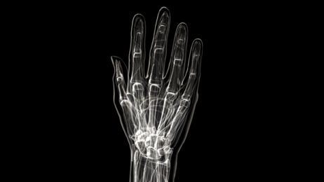 human-hand-xray_480x360