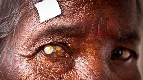 Eye camp Siliguri 2012