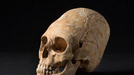 deformed-skull
