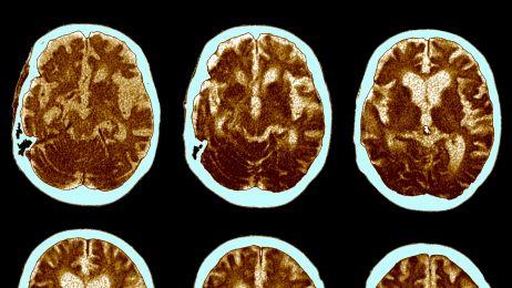 Zmiany w mózgu spowodowane demencją