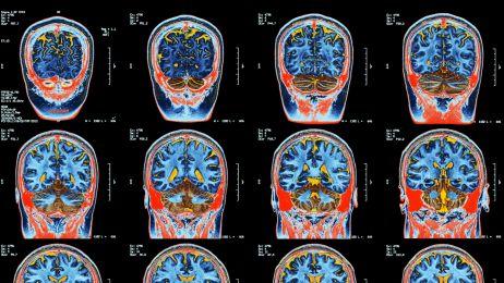 Mózg tworzy nowe komórki nawet w okolicach 90-tki