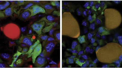 Komórki rakowe stały się tłuszczem! Fascynujące osiągnięcie naukowców