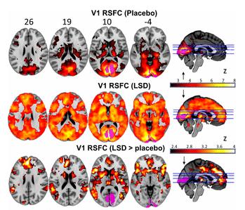 2. Zdjęcie  - Mózg pod wpływem LSD działa lepiej? Brytyjscy naukowcy to sprawdzili